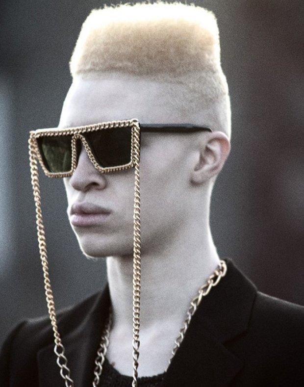 El primer modelo albino afroamericano SHAUN ROSS