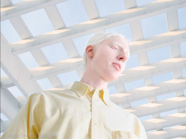 Angelina-dAuguste-Albinism-photography-albinos-fotografia-blog-modaddiction-10