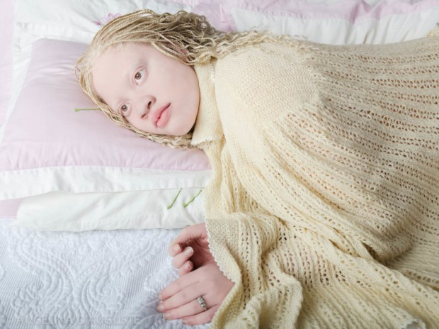 Angelina-dAuguste-Albinism-photography-albinos-fotografia-blog-modaddiction-2