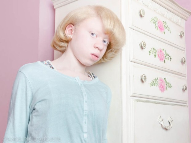 Angelina-dAuguste-Albinism-photography-albinos-fotografia-blog-modaddiction-3