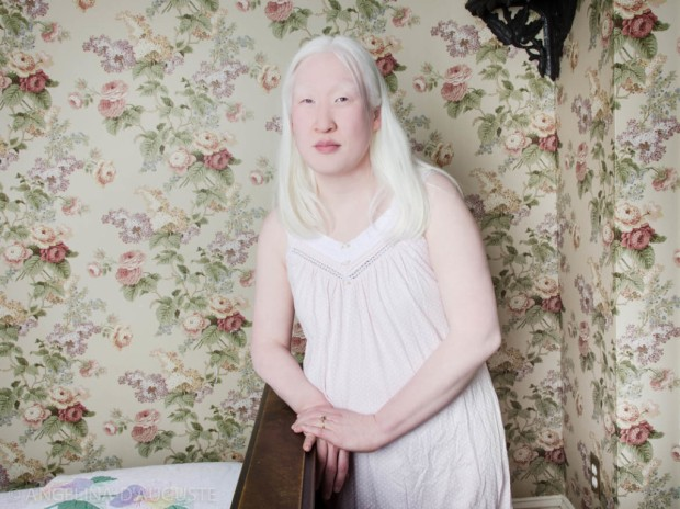 Angelina-dAuguste-Albinism-photography-albinos-fotografia-blog-modaddiction-4