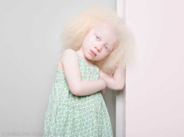 Angelina-dAuguste-Albinism-photography-albinos-fotografia-blog-modaddiction-5