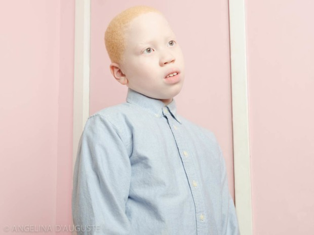 Angelina-dAuguste-Albinism-photography-albinos-fotografia-blog-modaddiction-8